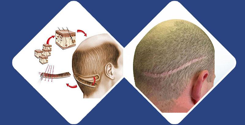 کاشت موی طبیعی به روش FUT