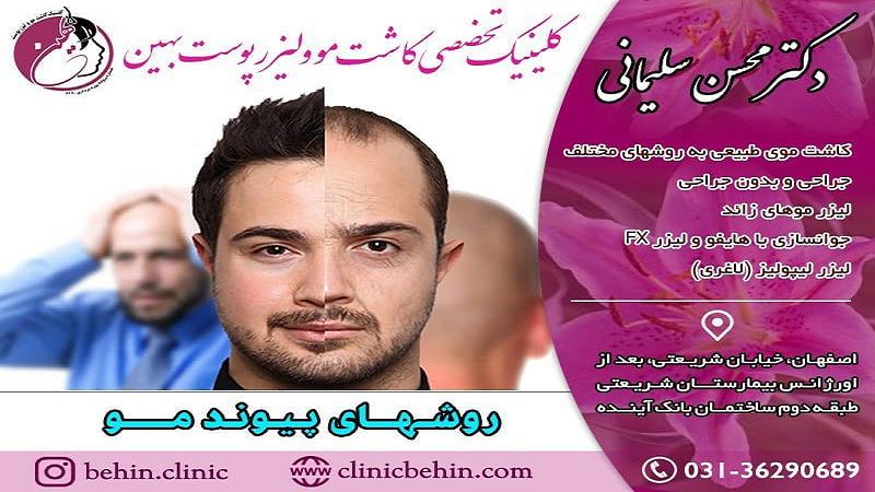 کاشت مو در اصفهان - روشهای ترمیم مو