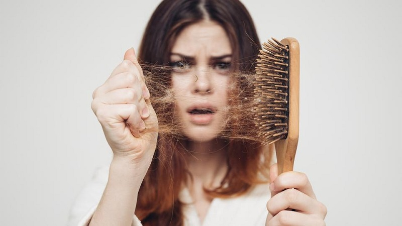 کاشت مو در اصفهان - راه های درمانی ریز مو در زنان