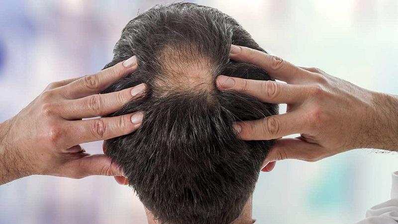 کاشت مو در اصفهان - دلایل ریزش مو مدل مردانه