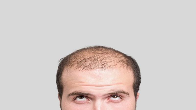 کاشت مو در اصفهان - هورمون ها چه تاثیری بر رشد و ریزش مو دارند ؟