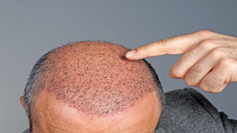 کاشت مو در بیماران مبتلا به دیابت