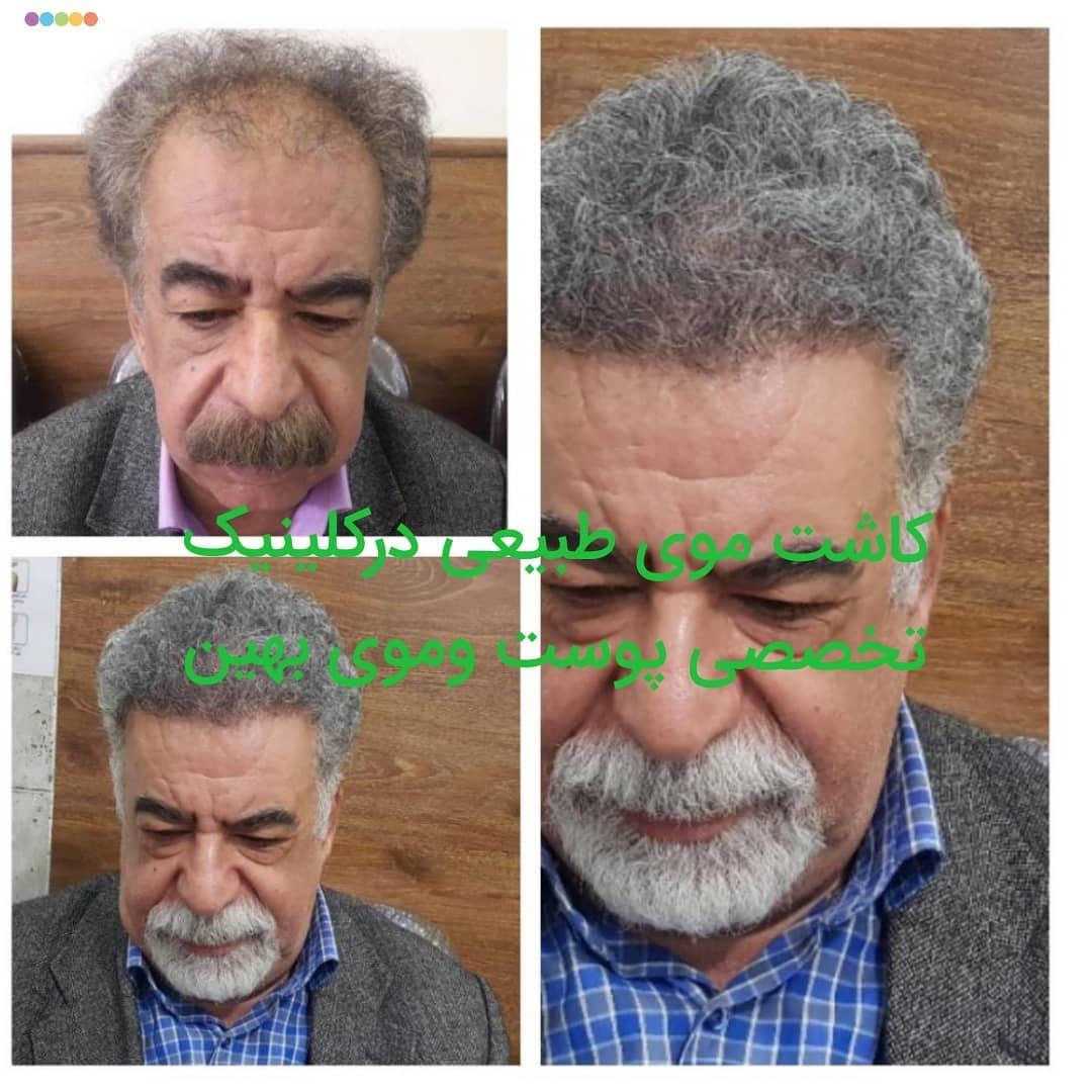کاشت مو در اصفهان | کاشت موی طبیعی