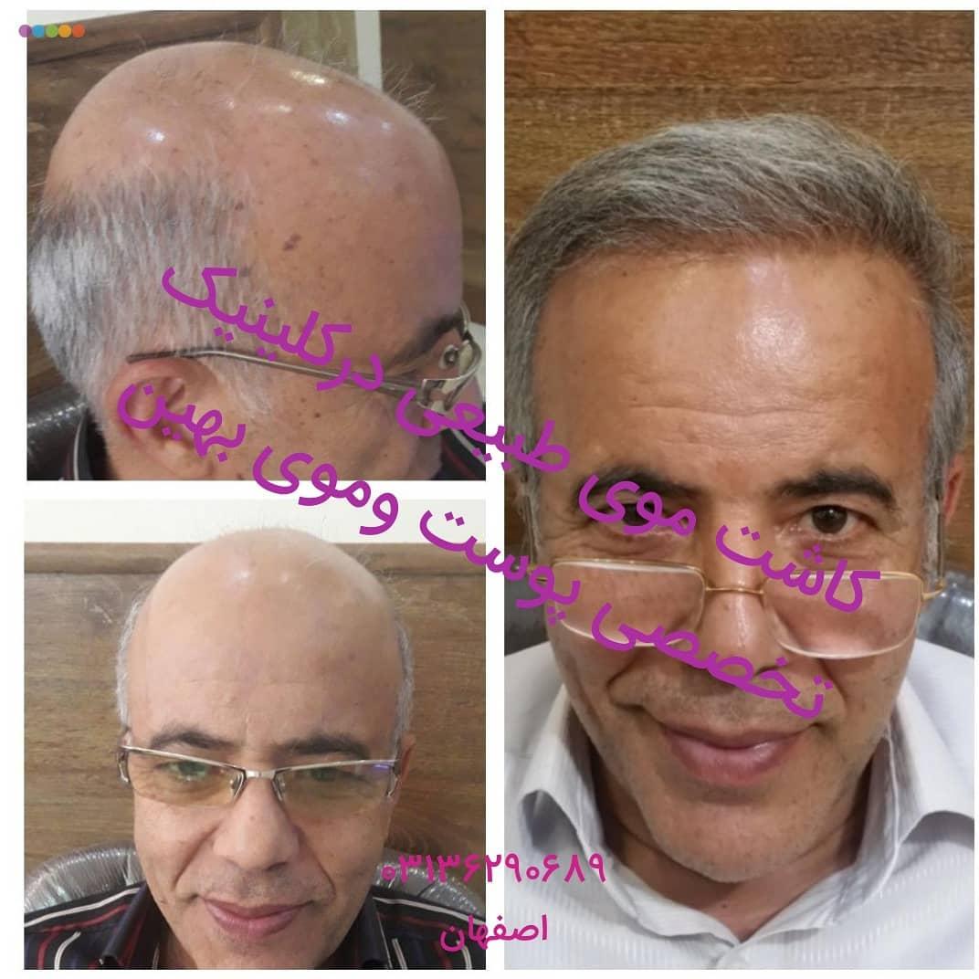 کاشت مو در اصفهان | کاشت موی تخصصی