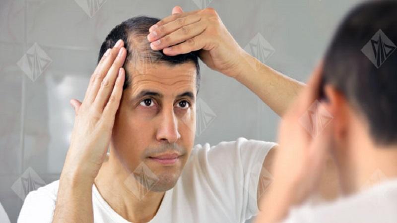 کاشت مو در اصفهان | بیماریهایی که با ریزش مو در ارتباط هستند
