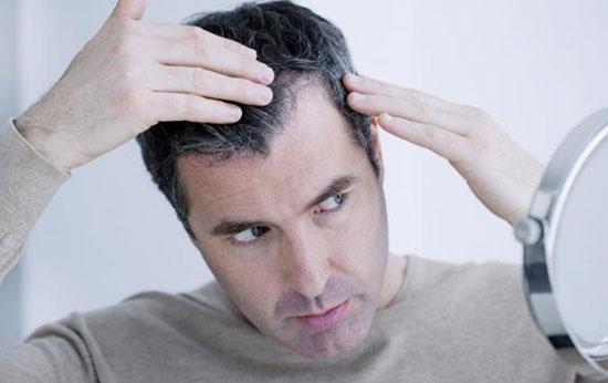 کاشت مو در اصفهان | توصیه و هشدارهای زیر را در رابطه با مو جدی بگیرید :