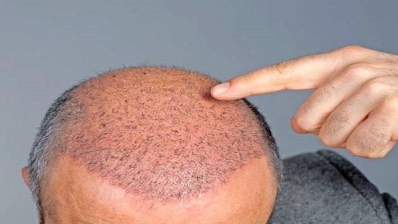 کاشت مو در اصفهان | ریزش موهای کاشته شده