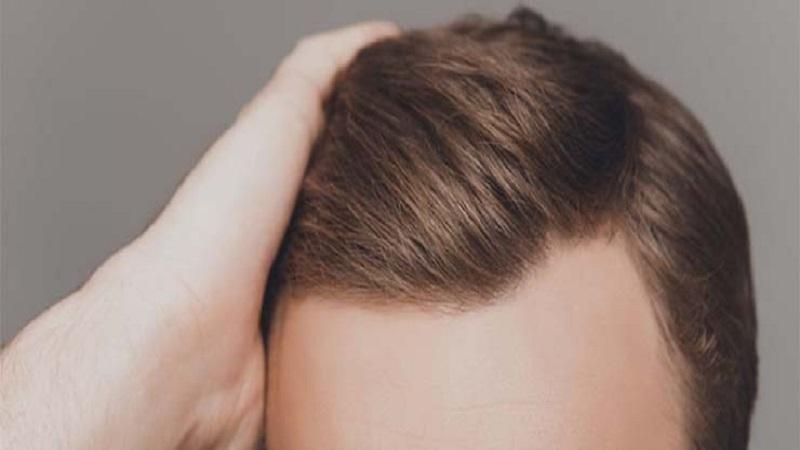 کاشت مو در اصفهان | منظور از بهترین روش کاشت مو چیست؟