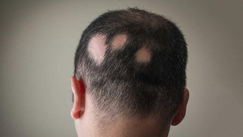 کاشت مو در اصفهان | دلایل ریزش موی سکه ای