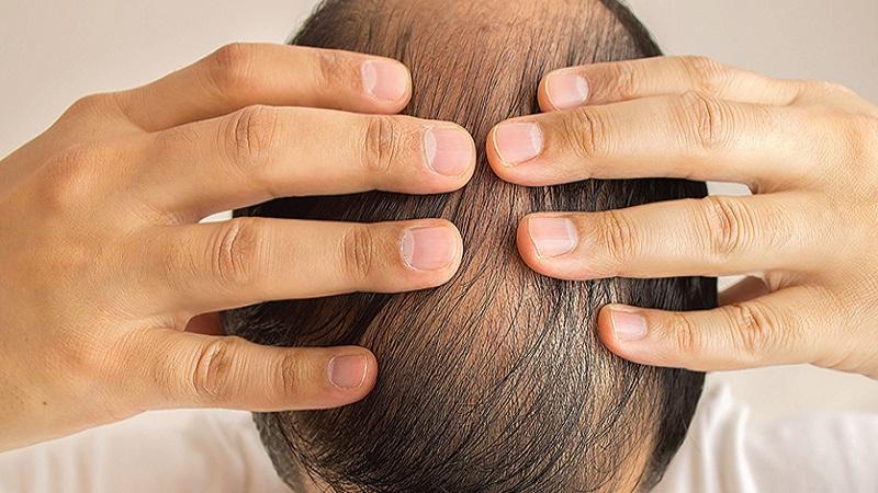 کاشت مو در اصفهان |کاشت مو برای افراد مبتلا به هپاتیت