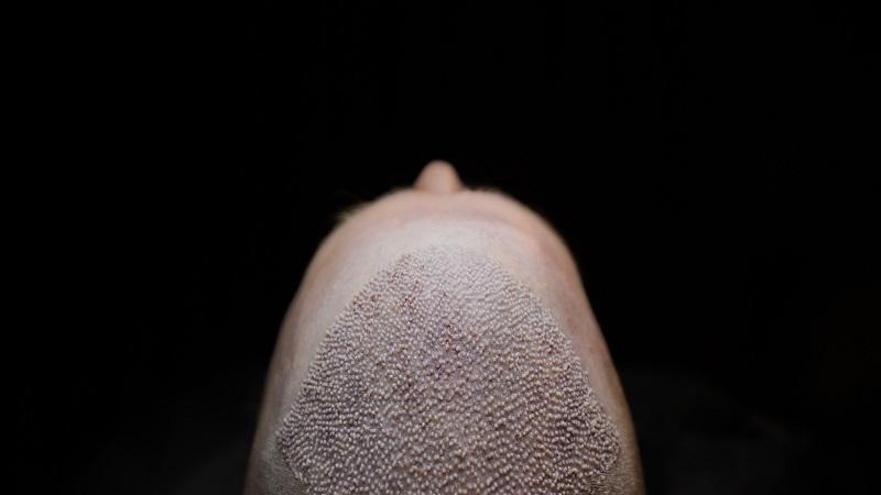 کاشت مو در اصفهان | جلوگیری از عفونت و تسریع بهبودی بعد از کاشت مو FUT و FIT