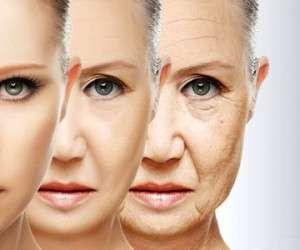 پیری پوست چگونه ایجاد میشود؟ | کاشت مو در اصفهان