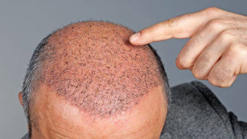 نمونه های کاشت مو