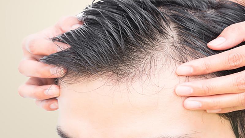 کاشت موی طبیعی اصفهان