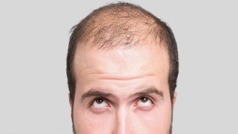 کاشت مو در کلینیک بهین