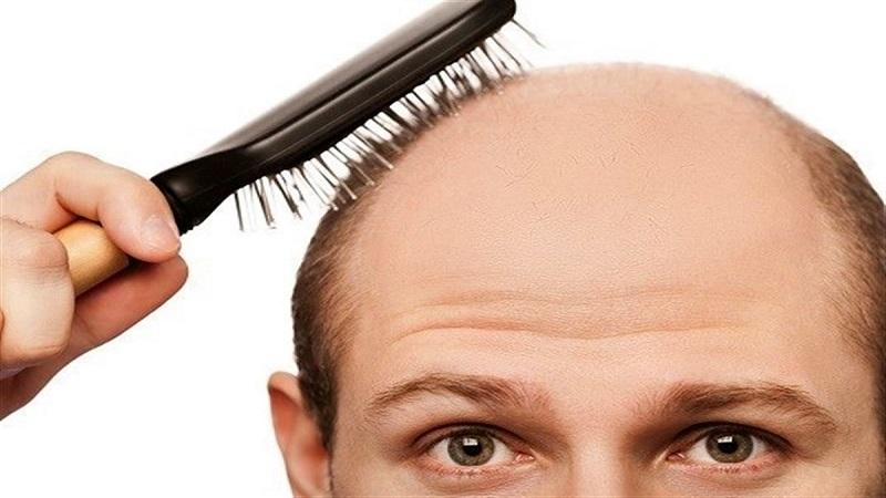 بیماریهای زمینهای ریزش مو چیست؟ | کاشت مو در اصفهان