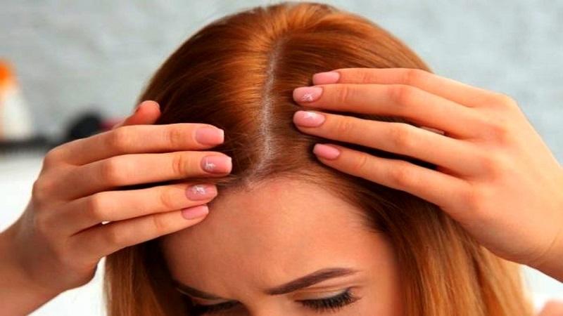 علت ریزش مو در بین زنان و دختران | کاشت مو در اصفهان