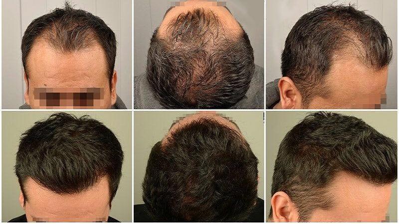 عوامل میزان تراکم مناسب کاشت موی طبیعی | کاشت مو در اصفهان