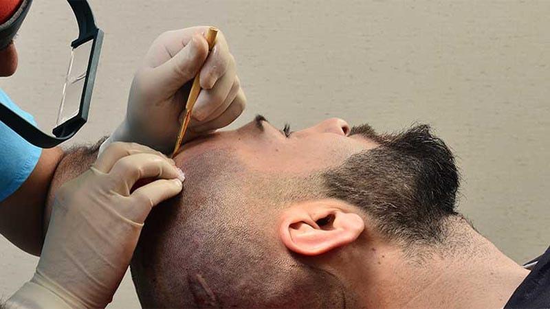 مراحل کاشت مو به روش سوپر ترکیبی | کاشت مو در اصفهان