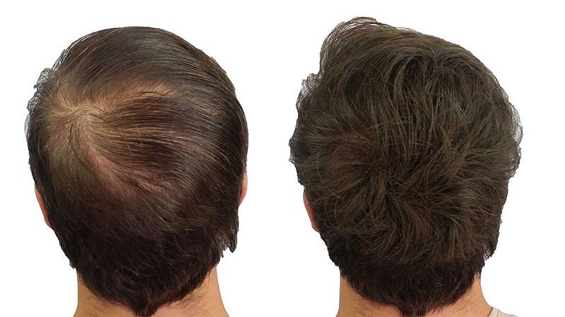 موثرترین روش های تقویت مو بعداز کاشت مو | کاشت مو در اصفهان