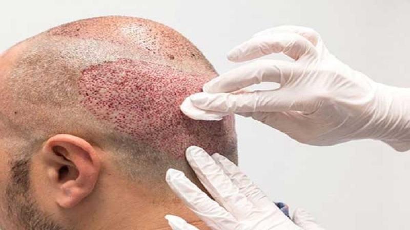 خونریزی بعد از کاشت مو | کاشت مو در اصفهان