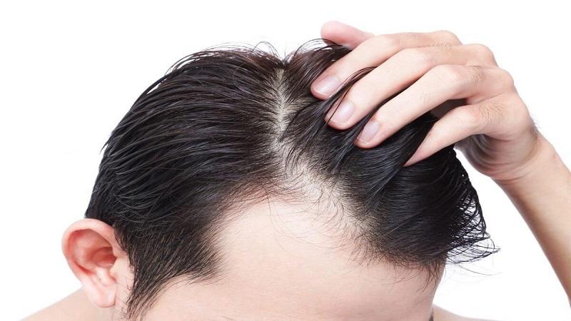 مراقبت پس از کاشت موی سوپرترکیبی   کاشت مو در اصفهان