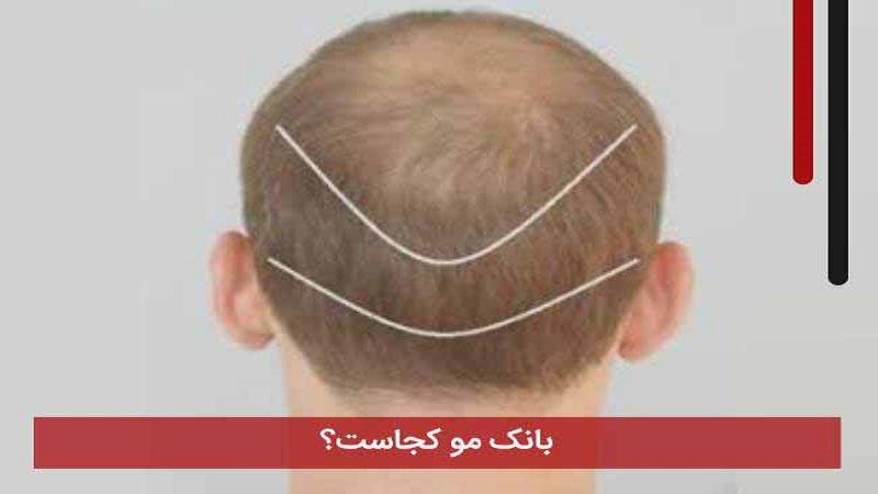 بانک مو چیست؟ | کاشت مو در اصفهان