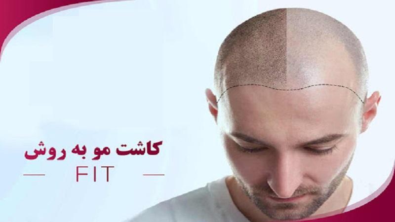 مراحل کاشت مو به روش Micro FIT   کاشت مو در اصفهان
