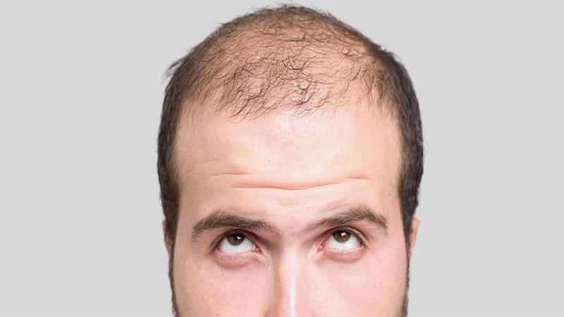 معایب روش Micro FIT | کاشت مو در اصفهان