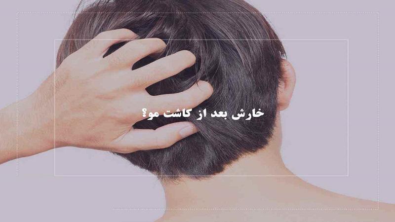 علت خارش بعد از کاشت مو | کاشت مو در اصفهان