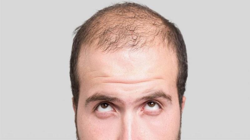 پیشگیری از سر درد پس از کاشت مو | کاشت مو در اصفهان