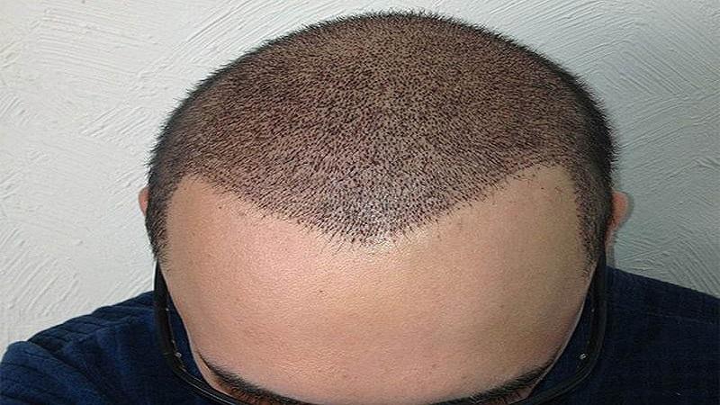 مزایای کاشت مو به روش نئوگرافت | کاشت مو در اصفهان