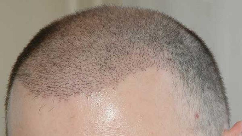 کاشت مو در پوست دارای اسکار | کاشت مو در اصفهان